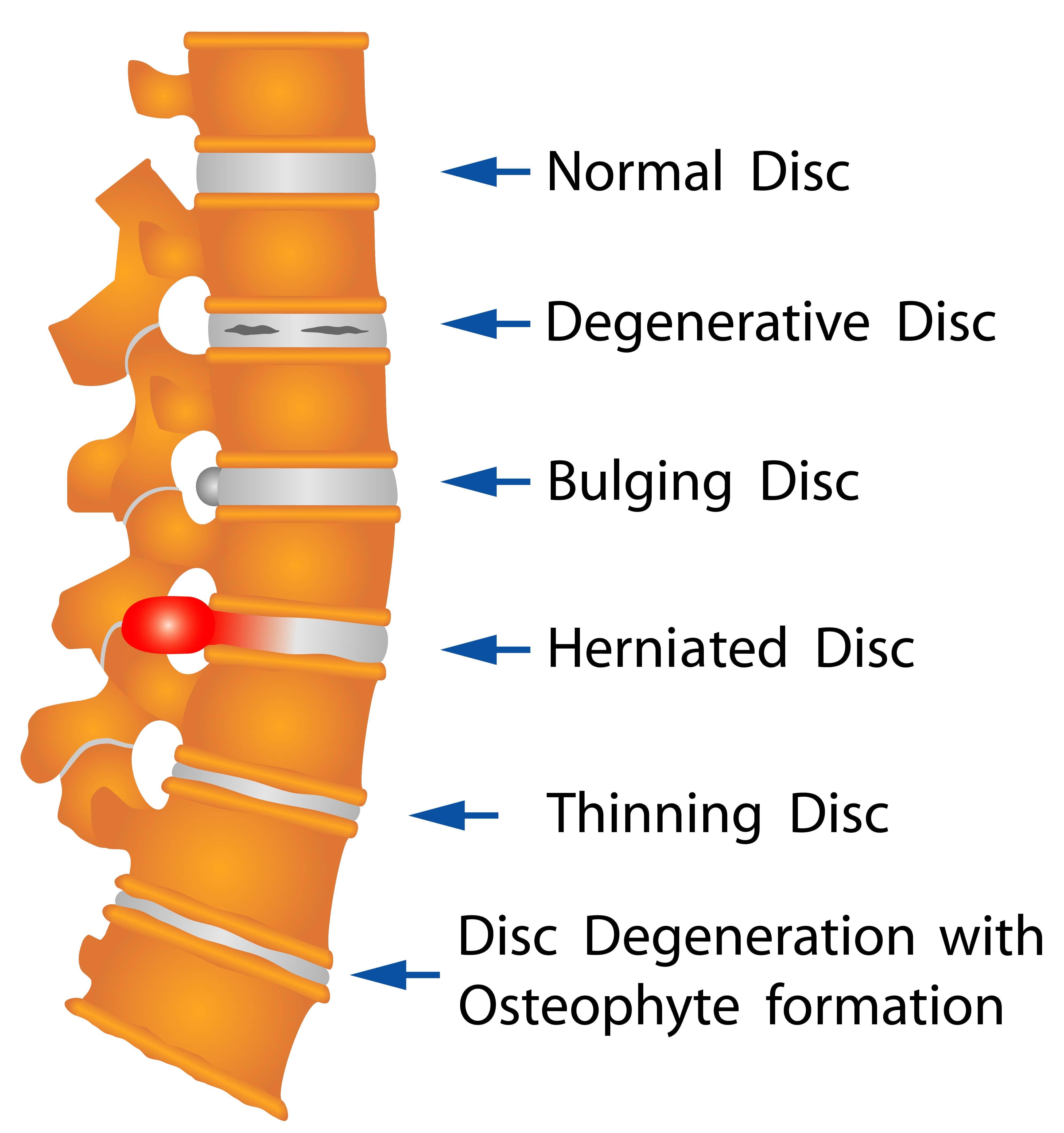 Disc Disorders chart